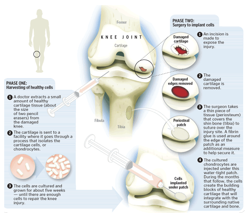 Cartilage Restoration infographic