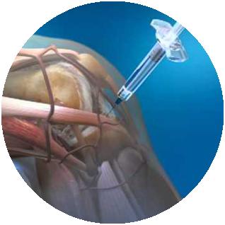 Bone Marrow Concentrate