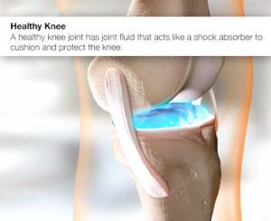 knee-pain-heathy-knee