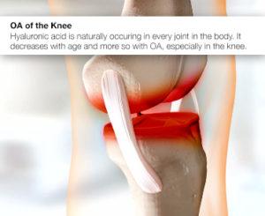 knee-pain-hyaluronic-acid
