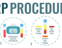 PRP Therapy Procedure