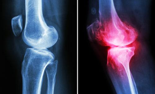 Osteoarthritis OA knee pain