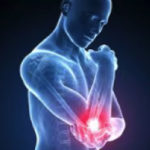 Stem Cell Injections can help heal elbow pain