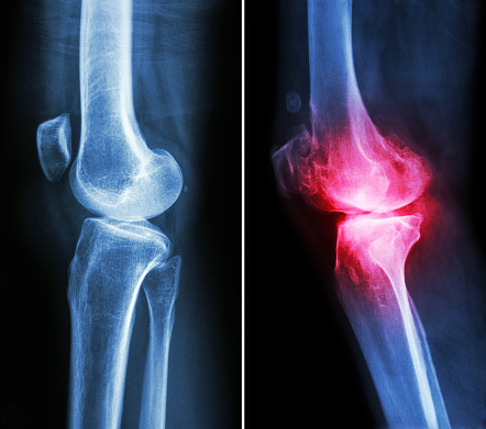 hyaluronic acid injections help osteoarthrits