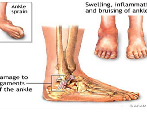sports-injuries-ankle