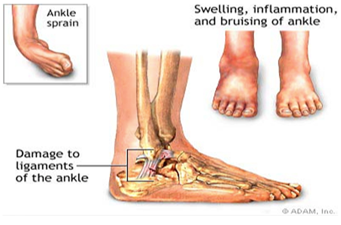 ankle injuries Acute ankle injuries are among the most common injuries in emergency departments however, there are still no standardized examination procedures or.