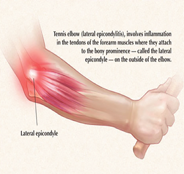 sports injuries elbow