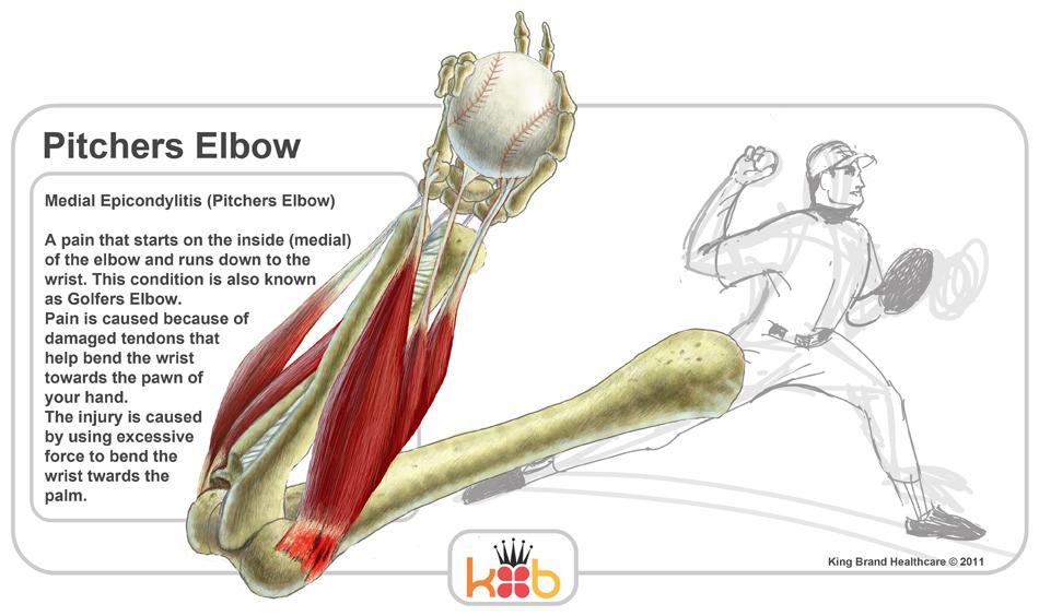 Diagram Pitchers Elbow West Coast Orthopedics