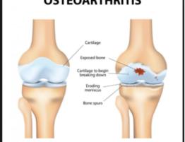 osteoarthritis-prp