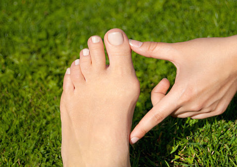 Bunions can be treated
