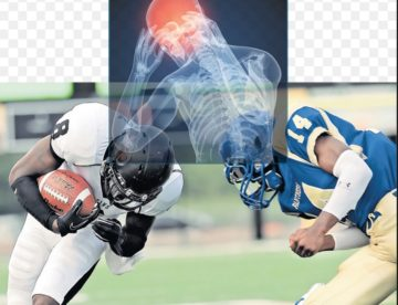 Brain Injury in sports