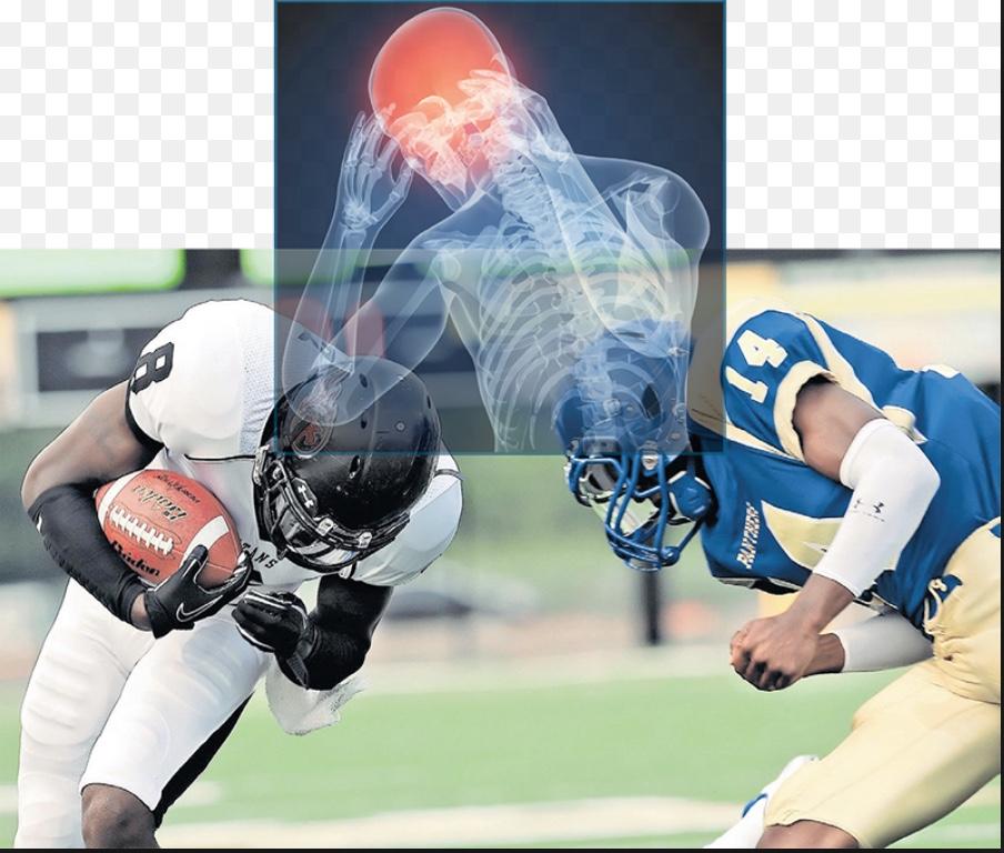 Brain Injury in sports
