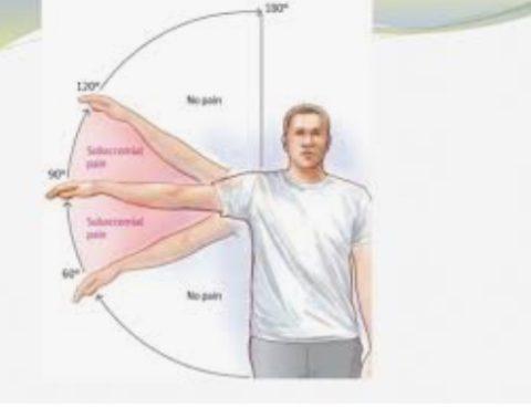 shoulder rehab is key